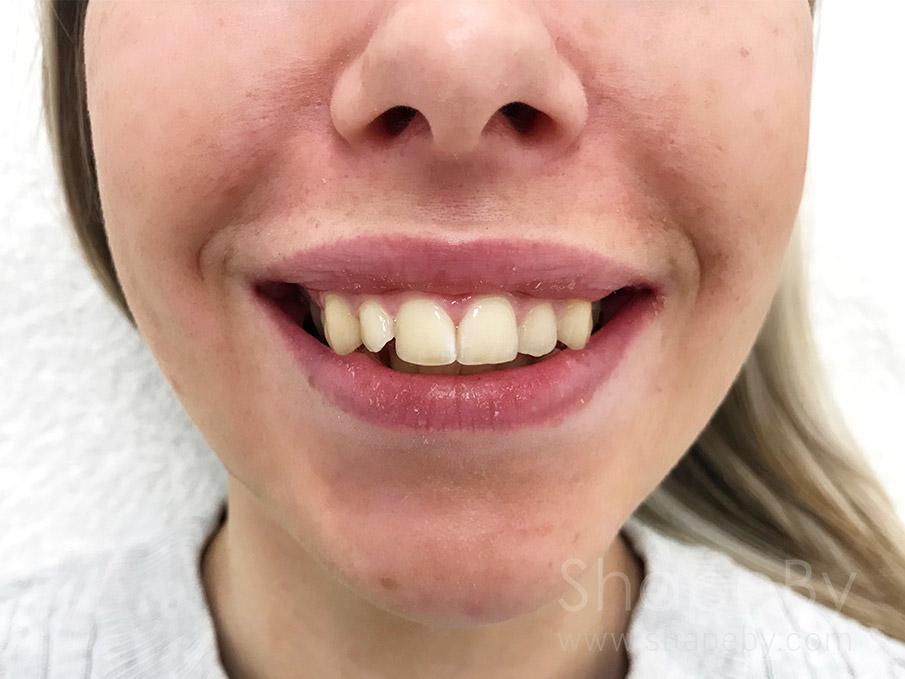 gummy-smile-efter-kvinna-2