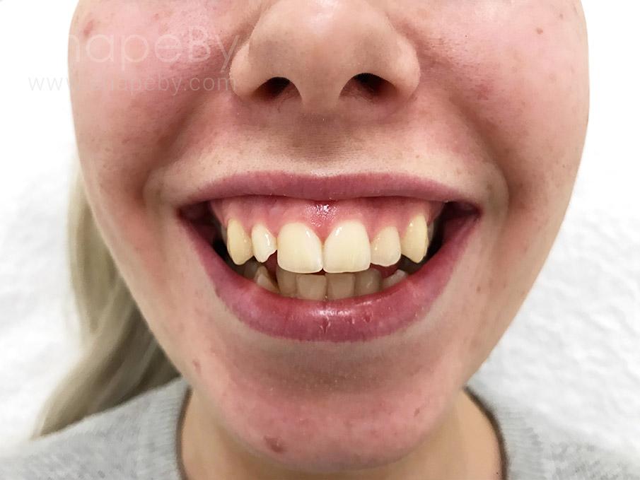 gummy-smile-före-kvinna2