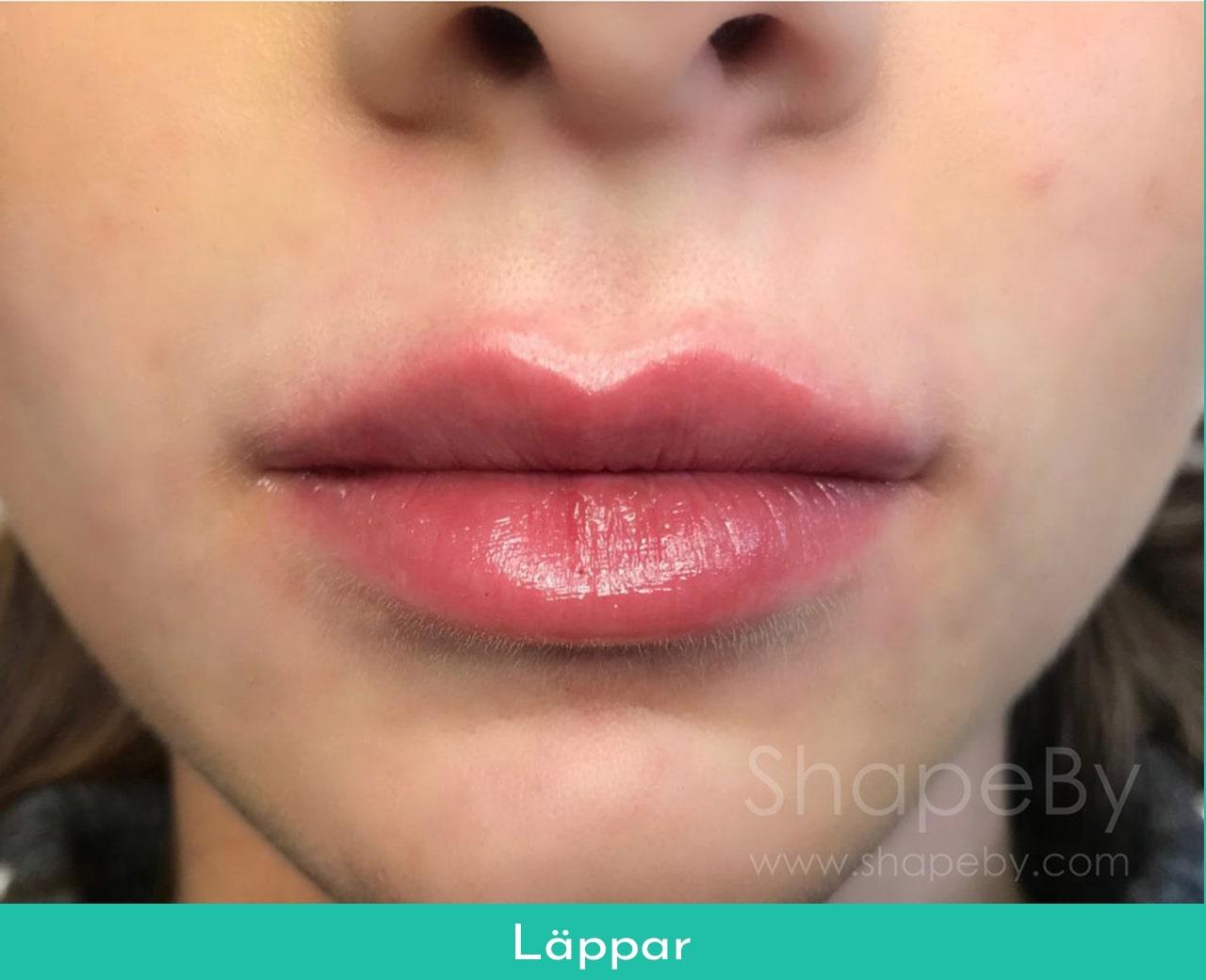 lip fillers stockholm
