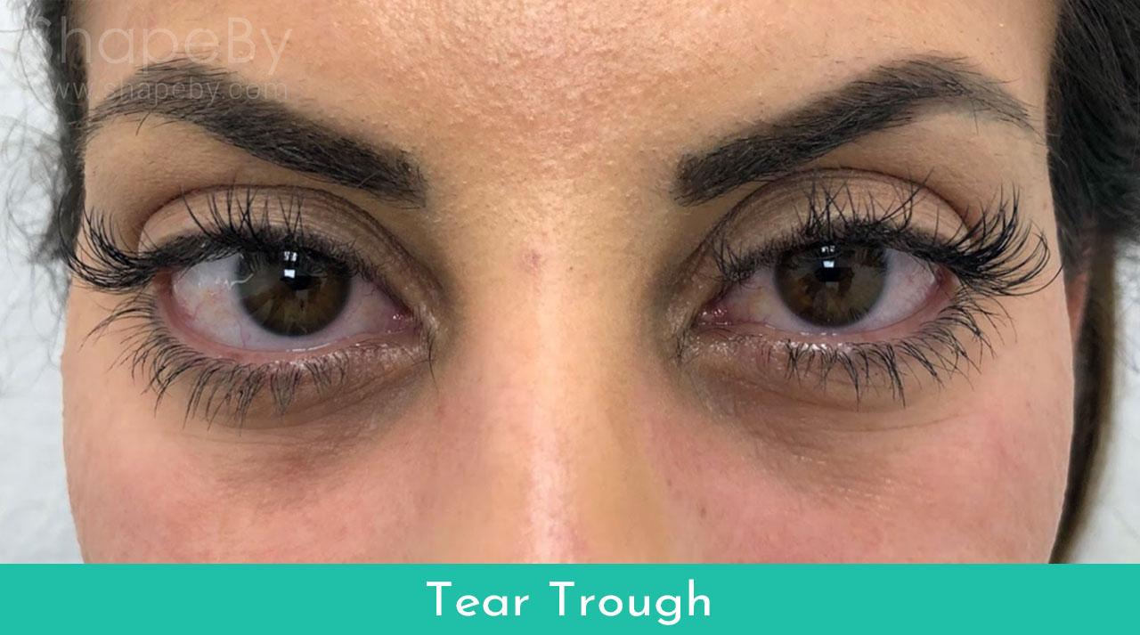 2-tear-trough-före-filler