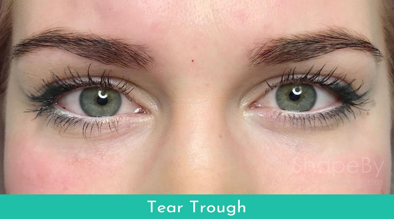 3-tear-trough-behandling-efter