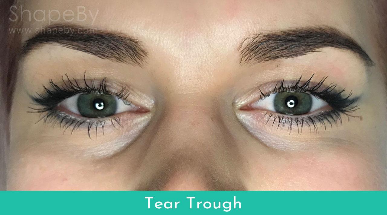 3-tear-trough-före-filler
