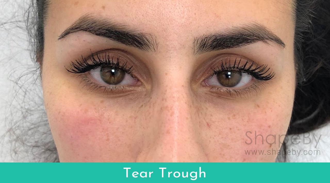 4-tear-trough-efter-filler-2
