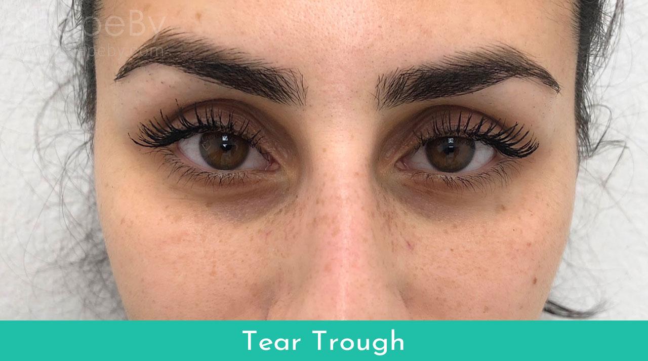 4-tear-trough-före-filler-2