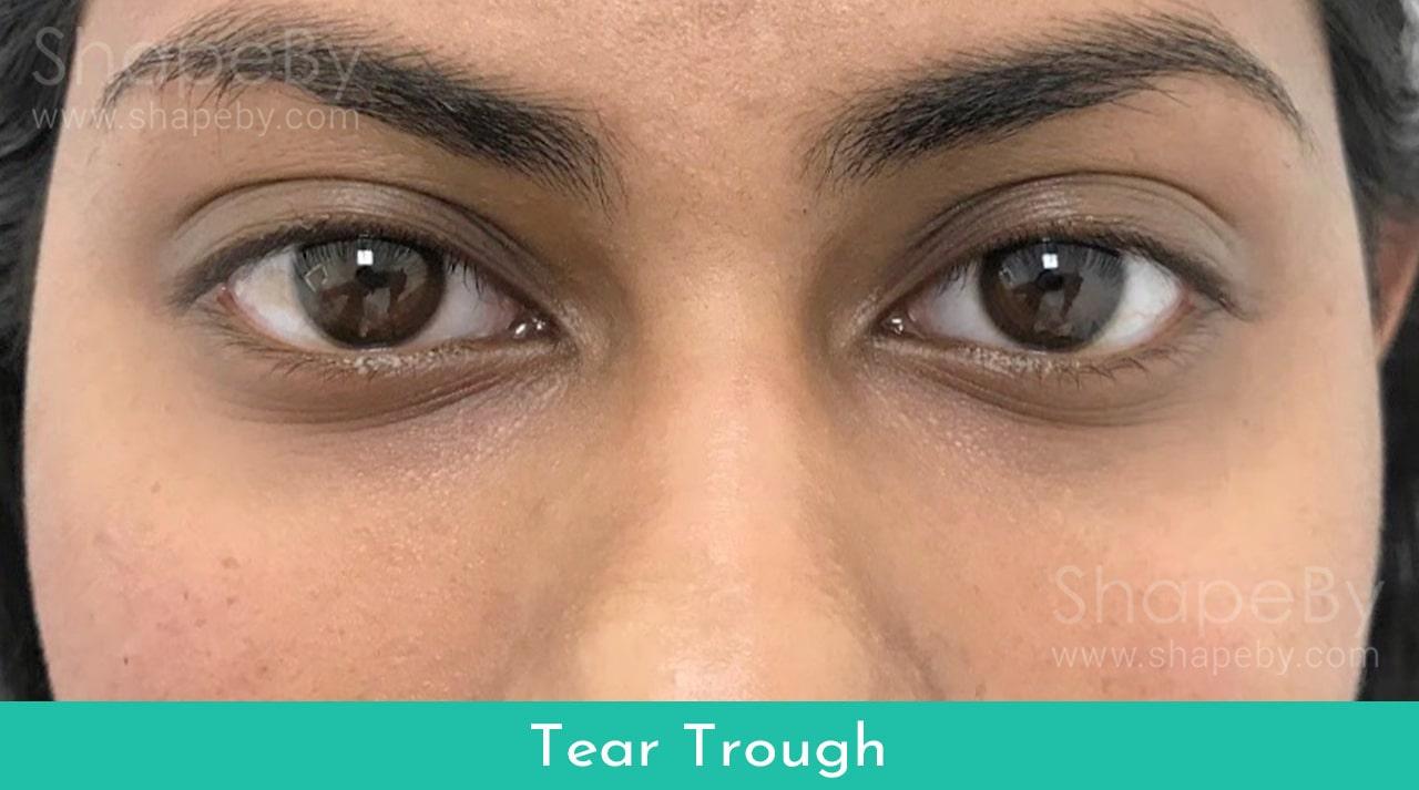 Tear1-min