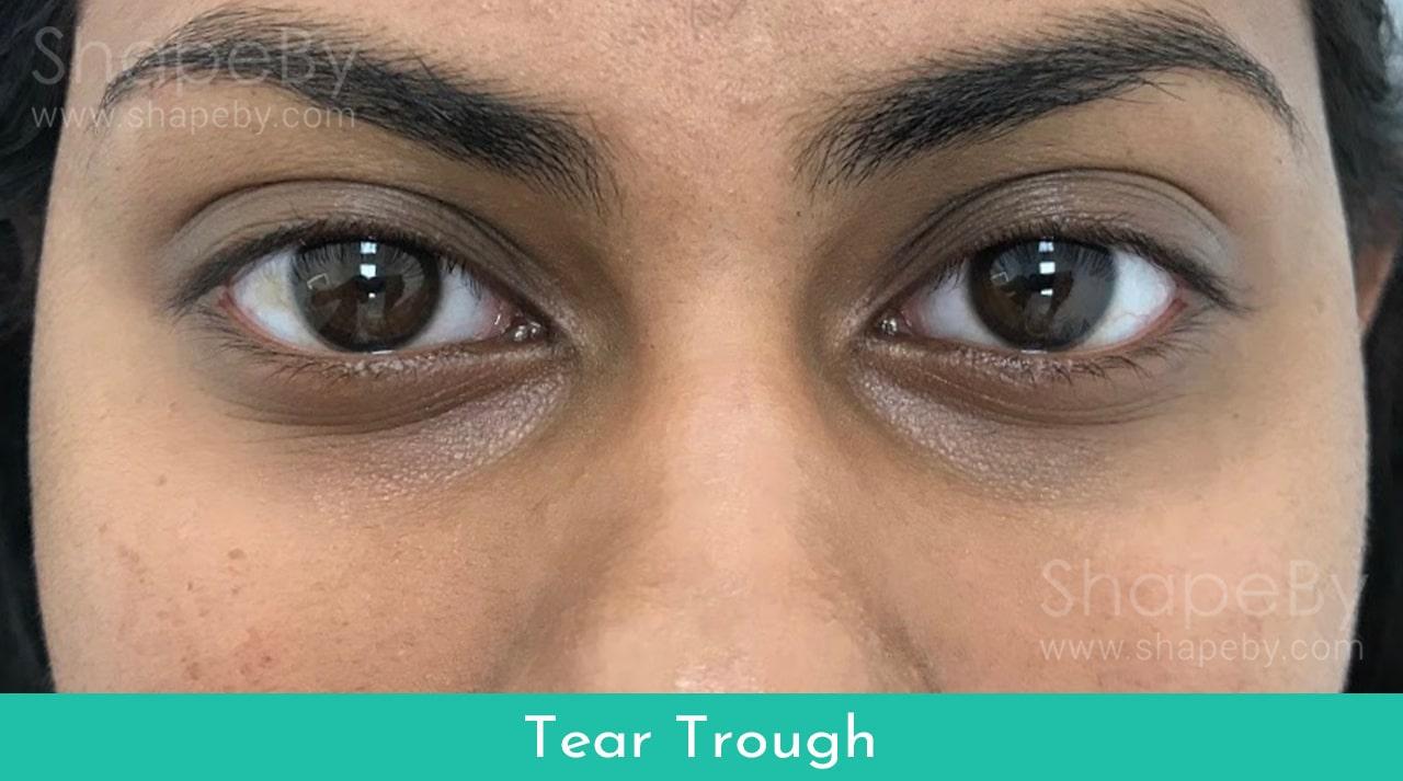 Tear2-min