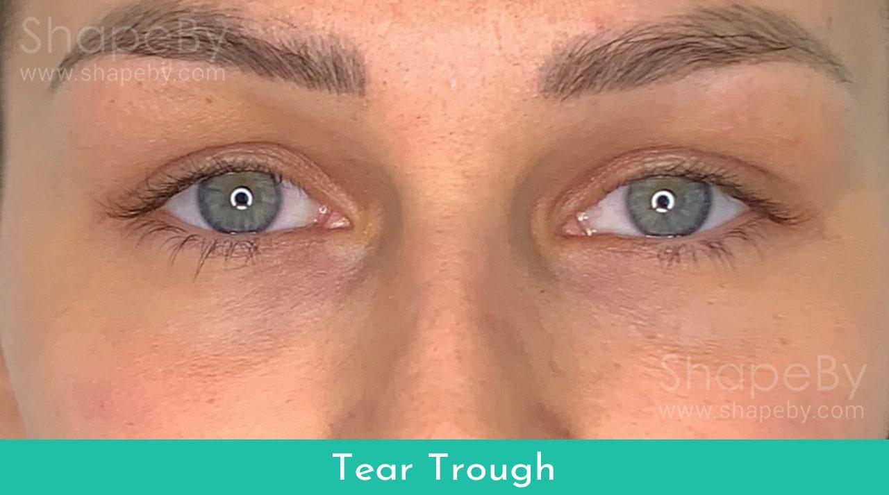 Tear3-min