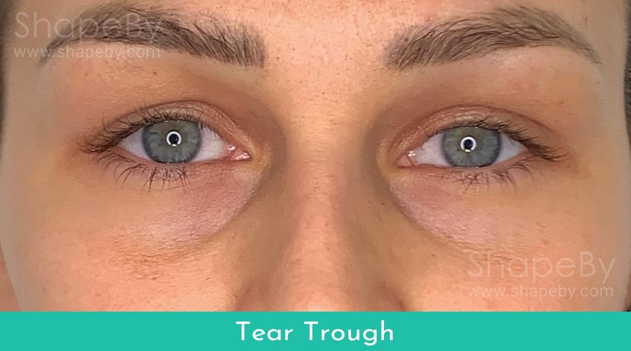 Tear4-min