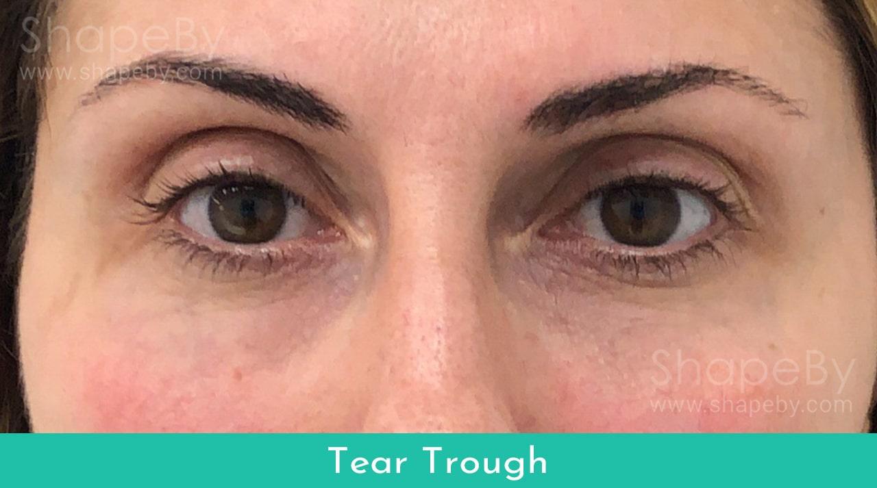 Behandling Tear Trough Efter
