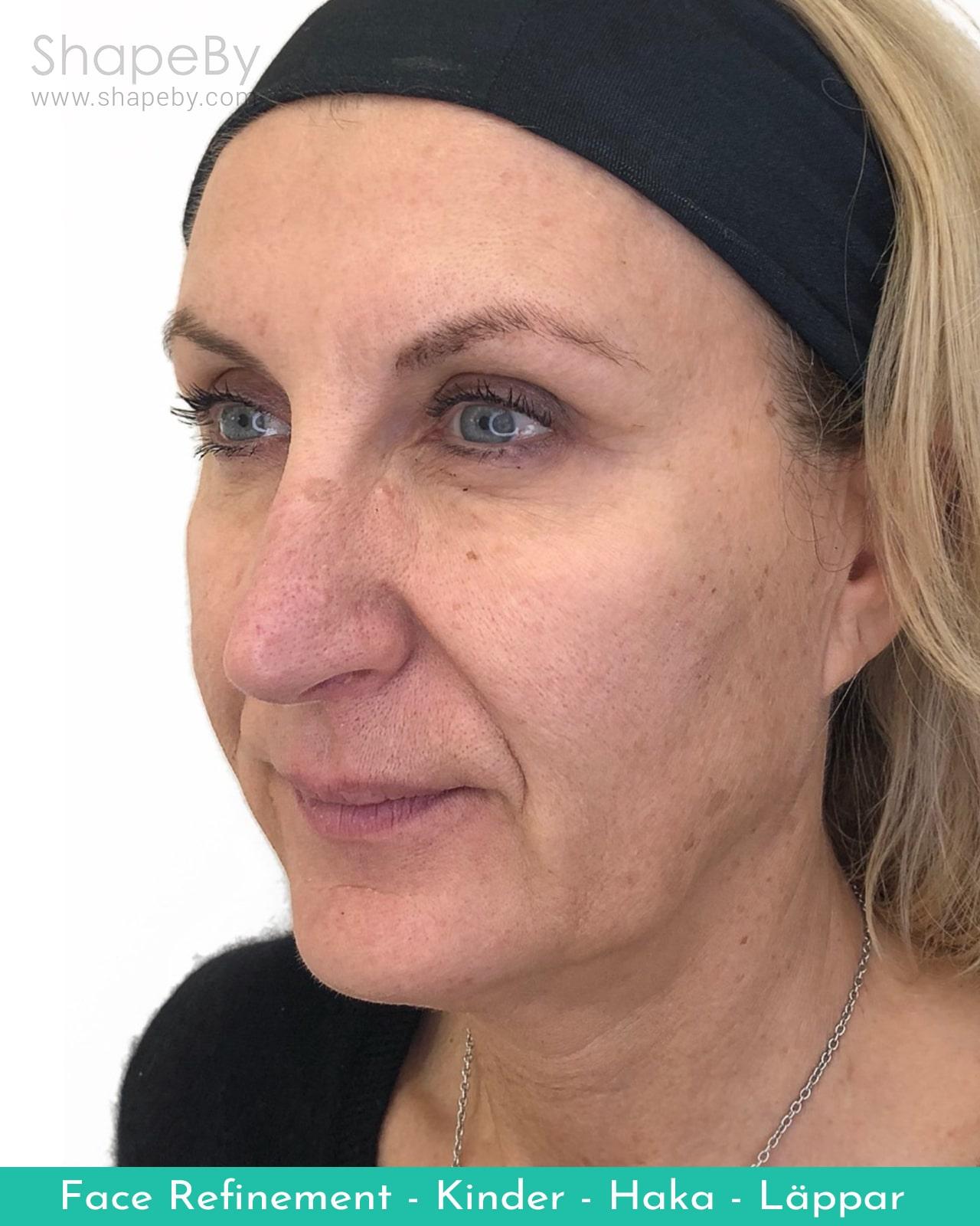 Face Refinement Ansiktslyft Före