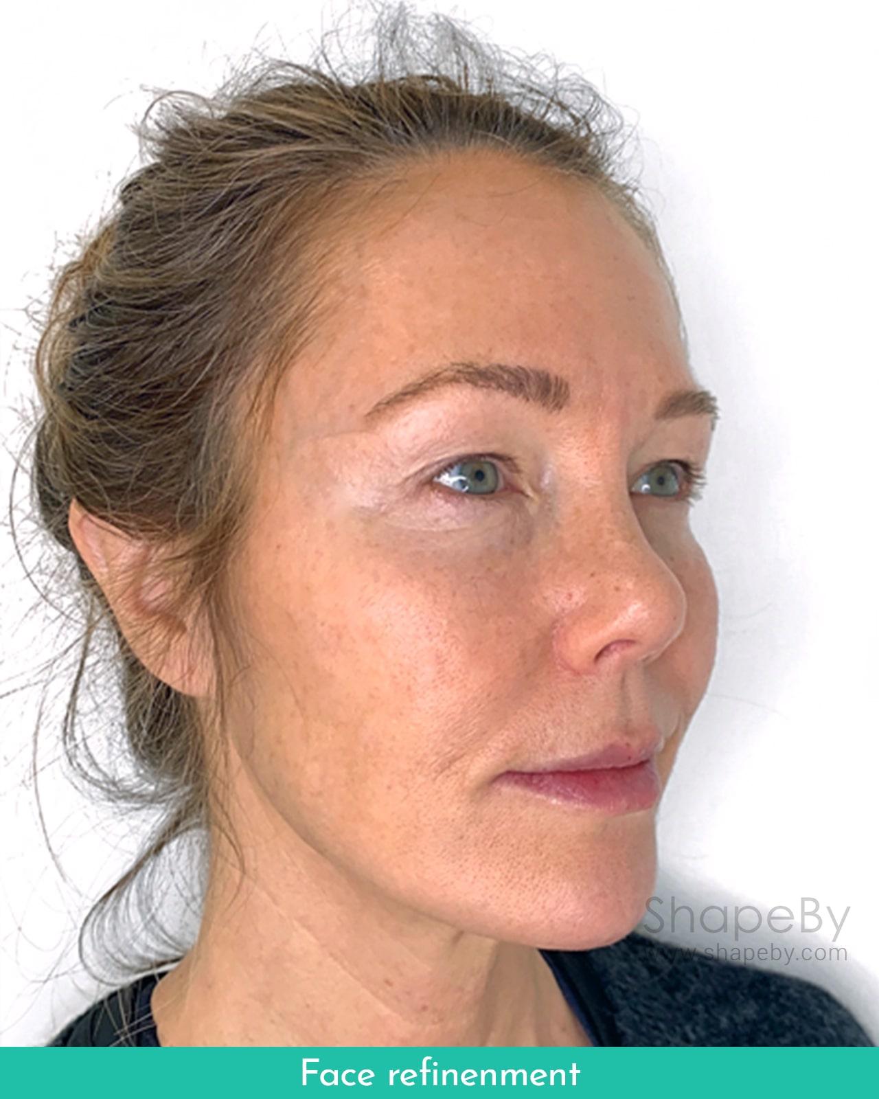 Face Refinement Efter