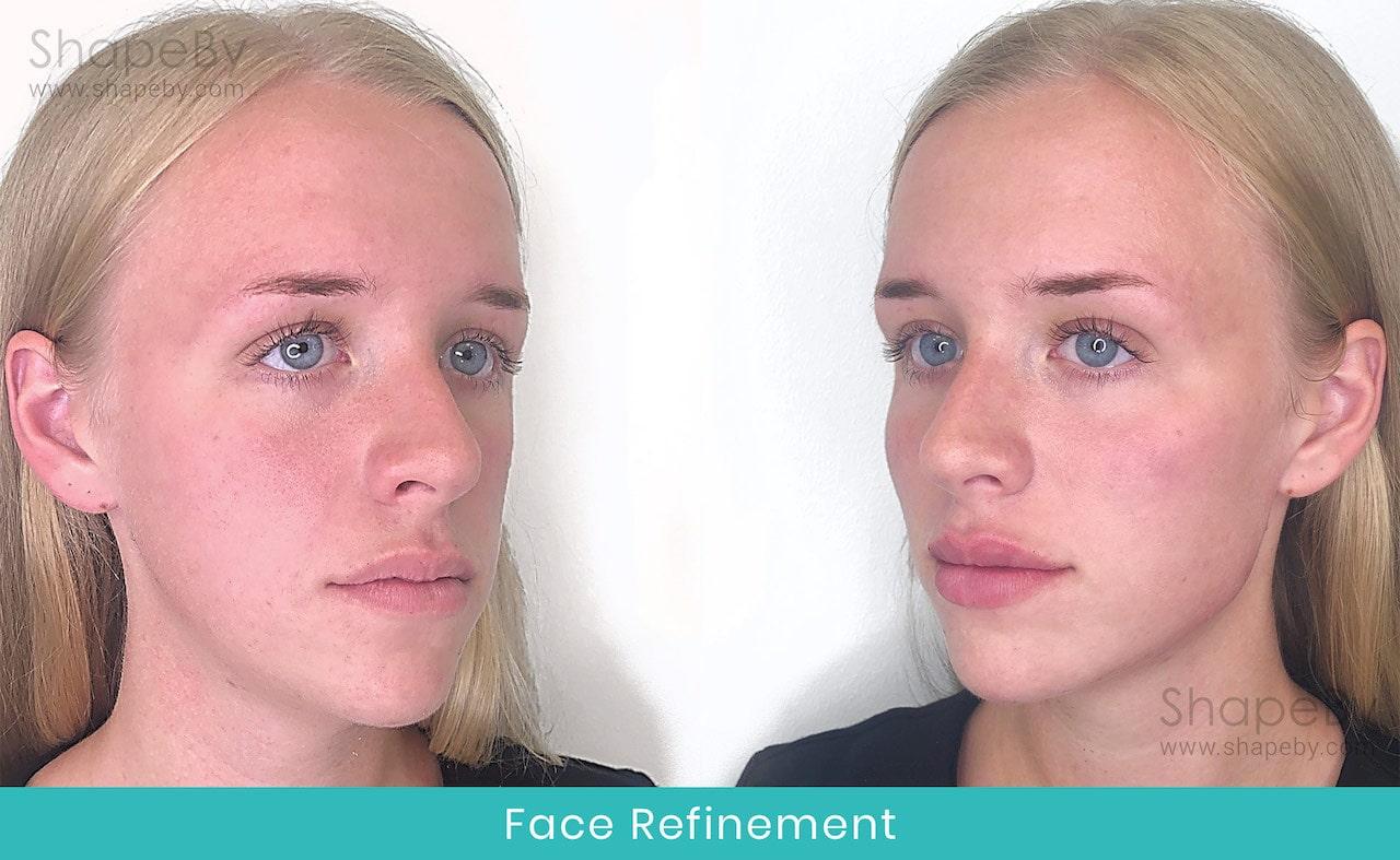 Face Refinement Före Efter