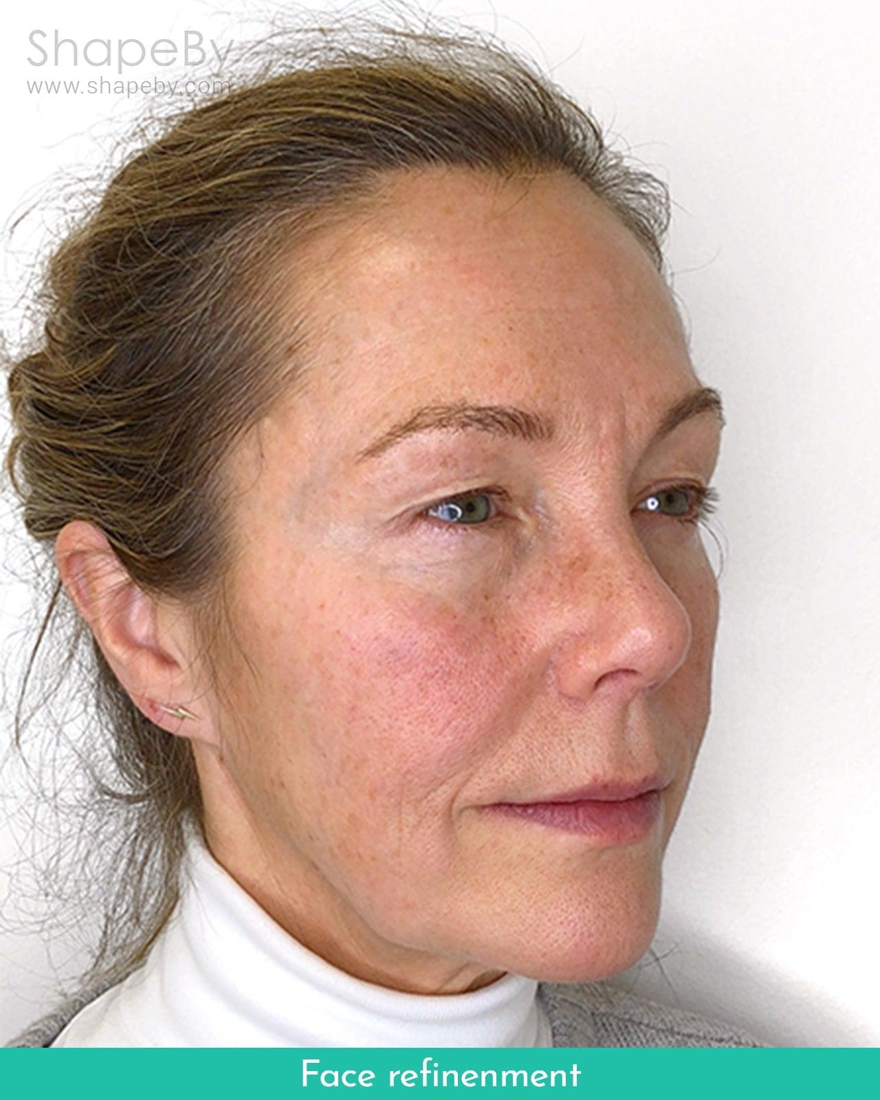Face Refinement Före