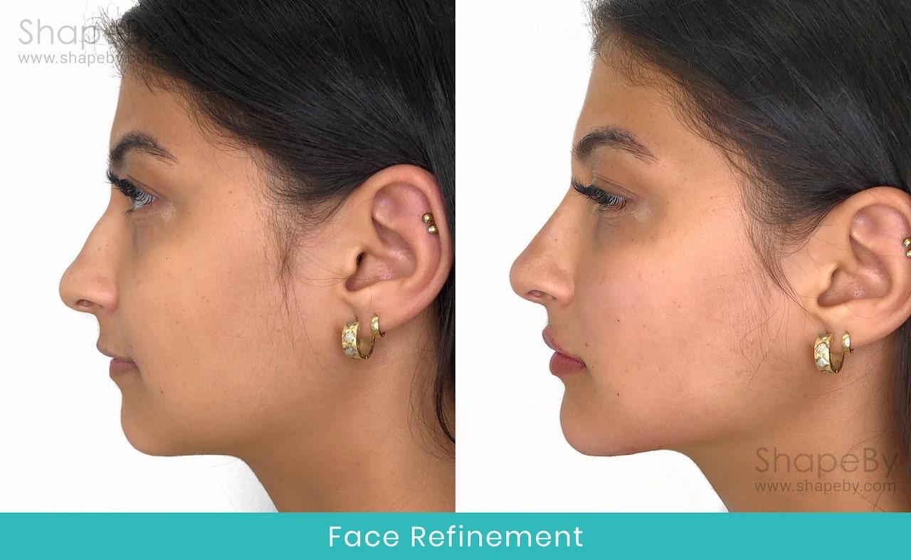 Före Efter Face Refinement