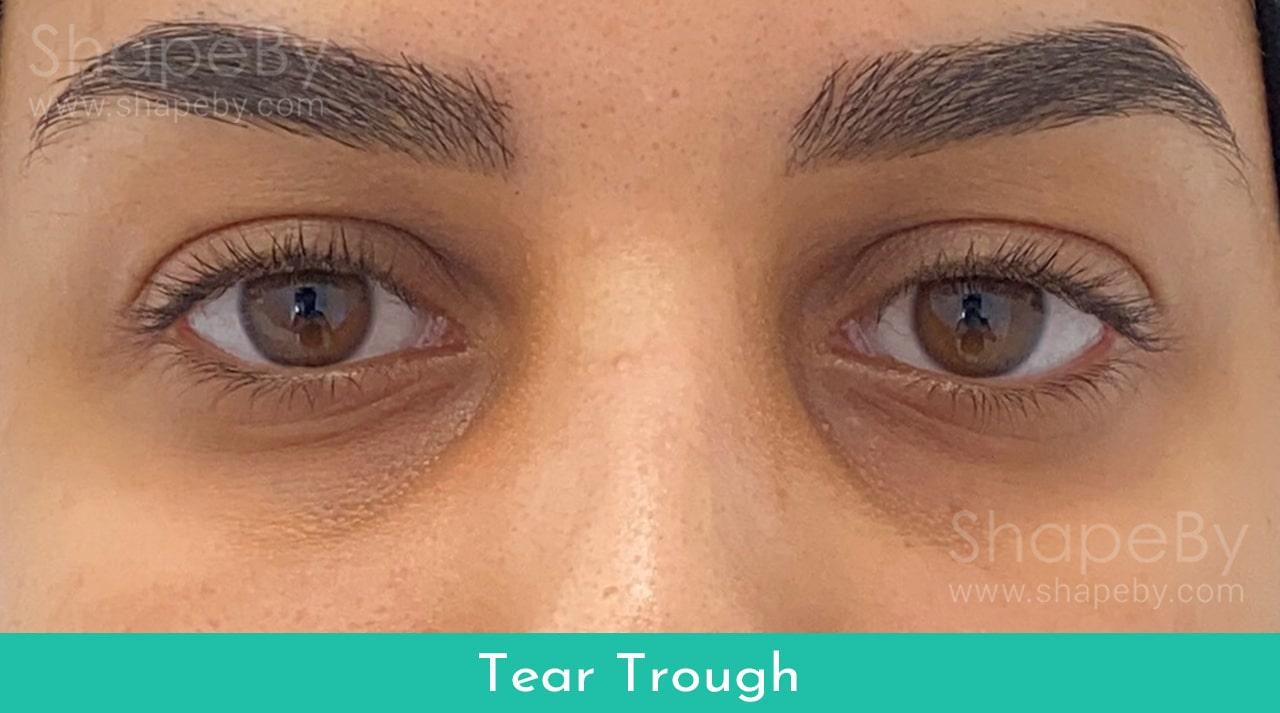 Tear Trough Behandling Resultat Före